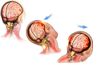 concussions and brain injuries s4 photo of illustration of a concussion
